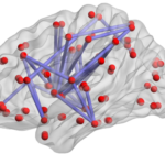 """Cartoon image of a human brain viewed from the side. The brain is a translucent gray color, and inside each section of the brain are many bright red dots, some of which are connected to one another via indigo straight lines.  """"Brain network"""" by Wikimedia Commons is licensed under CC BY-SA 3.0."""